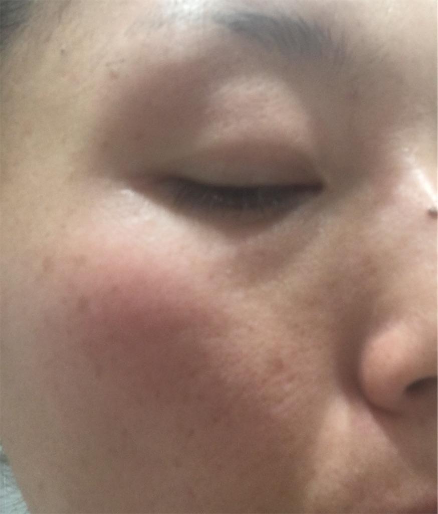 ライスフォース使用前のお肌の状態