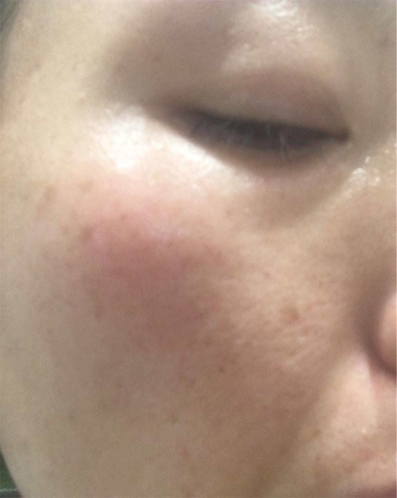 ライスフォースを2週間使用後のお肌の状態