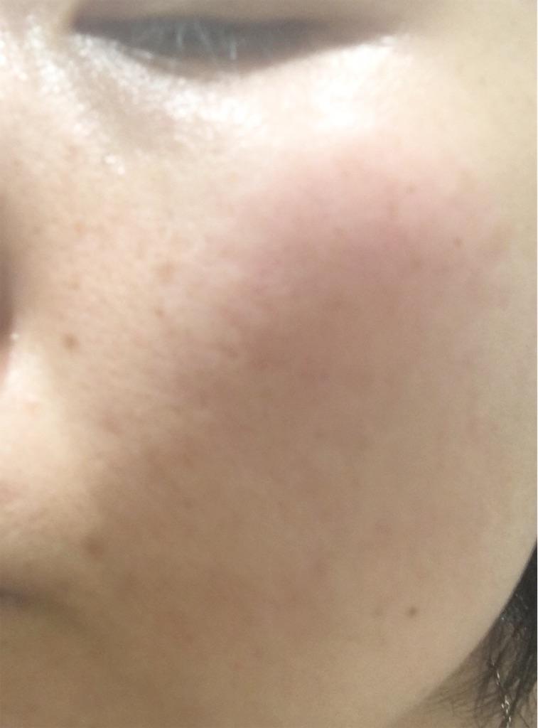 ライスフォース30日セットを使って1ヶ月後の肌の状態